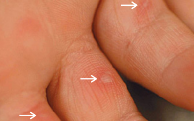 Q&A Series #26 Q: I have these persistent white, hard bumps on my fingers which are getting more by the day. What are they? How to get rid of them?