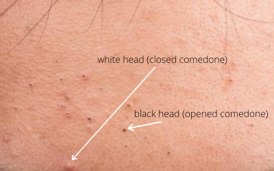 Q&A Series #28 Q: What are the differences between white heads and black heads?