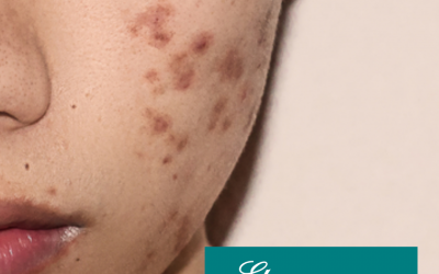 Q&A Series #30 Q: Are acne scars permanent?
